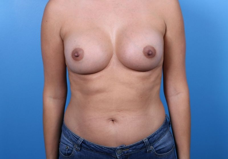 After Breast Augmentation Raleigh Front