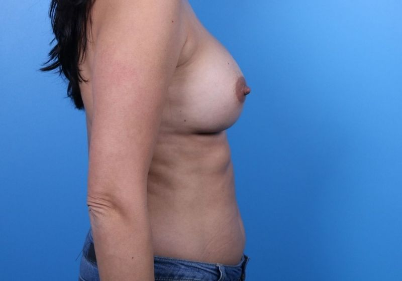 After Breast Augmentation Raleigh Profile