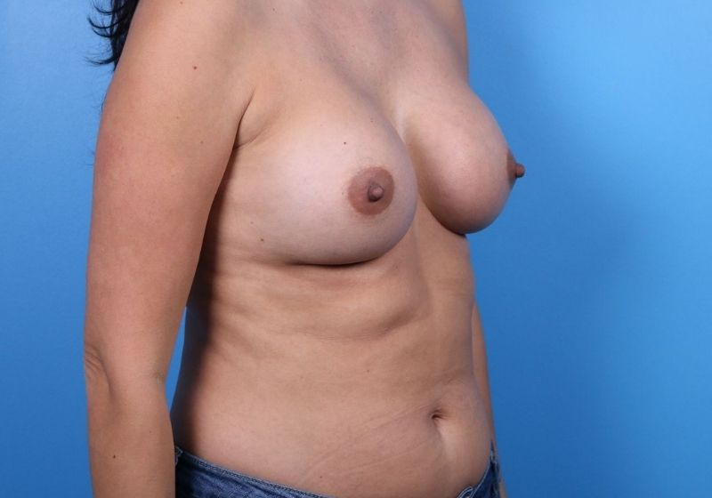 After Breast Augmentation Raleigh Side
