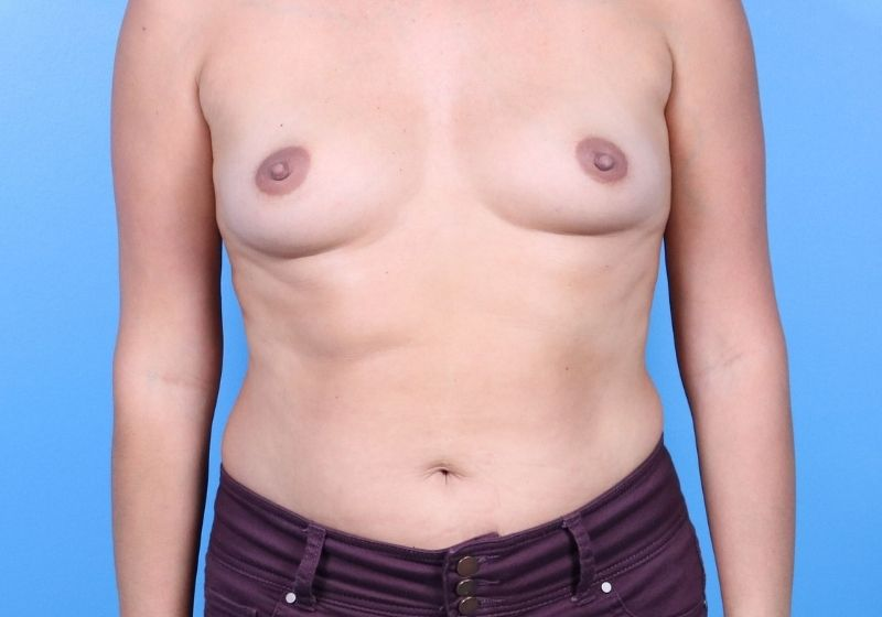Before Breast Augmentation Raleigh Front