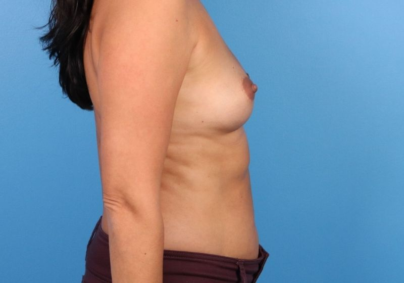 Before Breast Augmentation Raleigh Profile