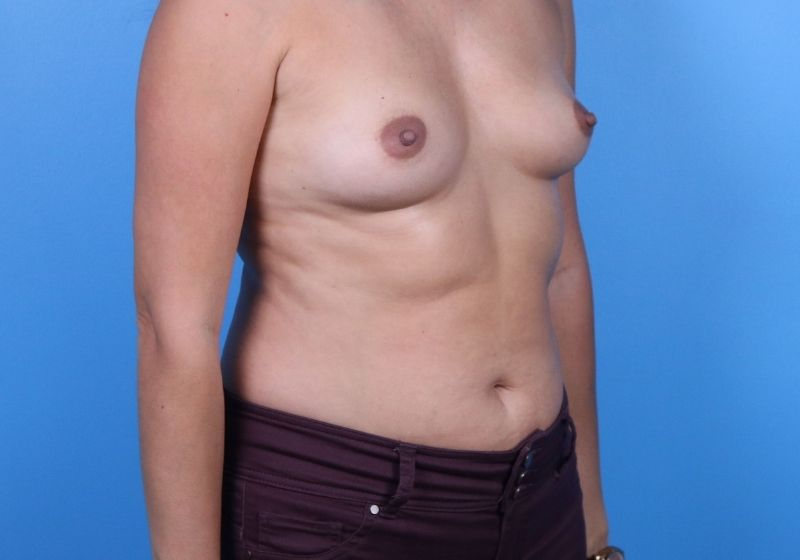 Before Breast Augmentation Raleigh Side