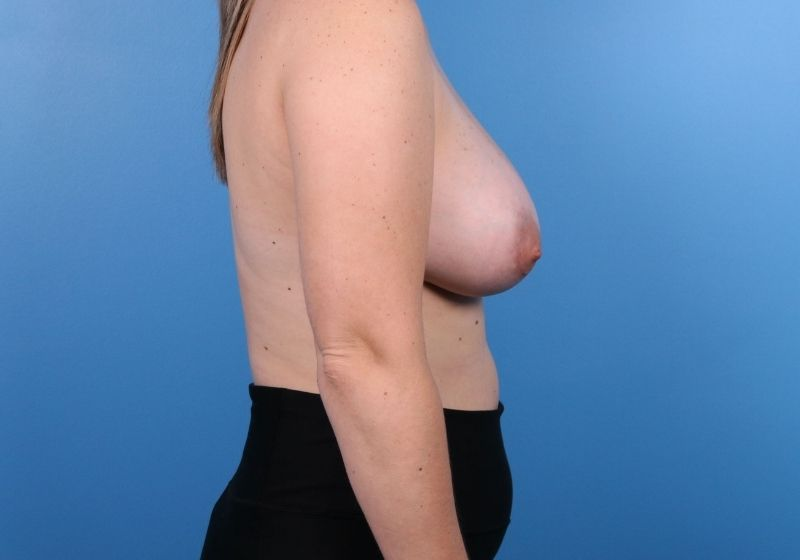 Breast Augmentation Surgery Raleigh After Profile