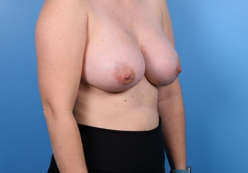 Breast Augmentation Surgery Raleigh After Side