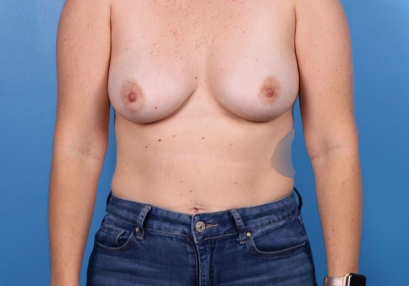 Breast Augmentation Surgery Raleigh Before Front
