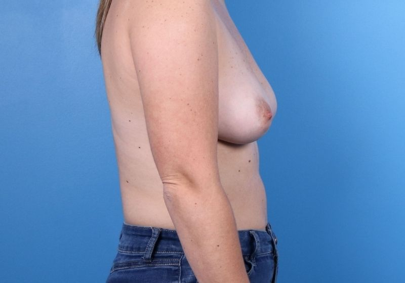 Breast Augmentation Surgery Raleigh Before Profile