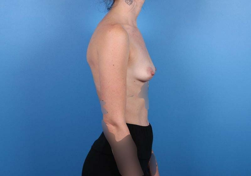 Raleigh Breast Augmentation surgery- Before Procedure