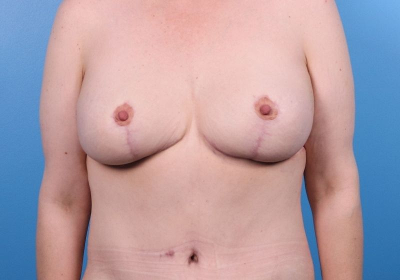 After Breast Lift Surgery Raleigh Front