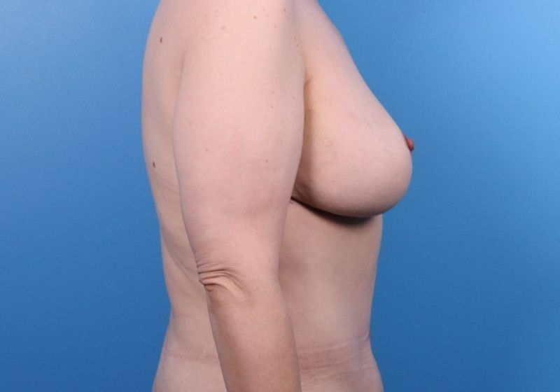 After Breast Lift Surgery Raleigh Profile