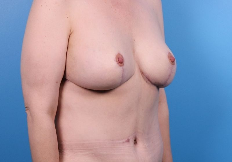 After Breast Lift Surgery Raleigh Side