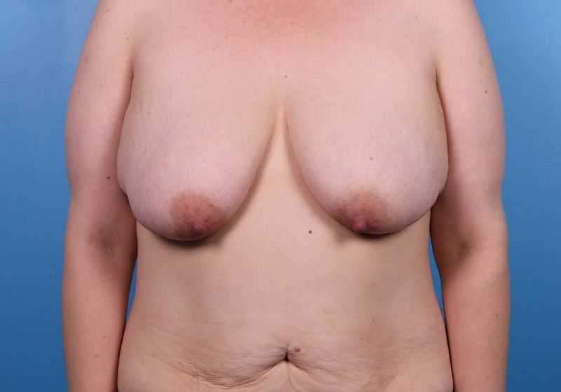 Before Breast Lift Surgery Raleigh Front