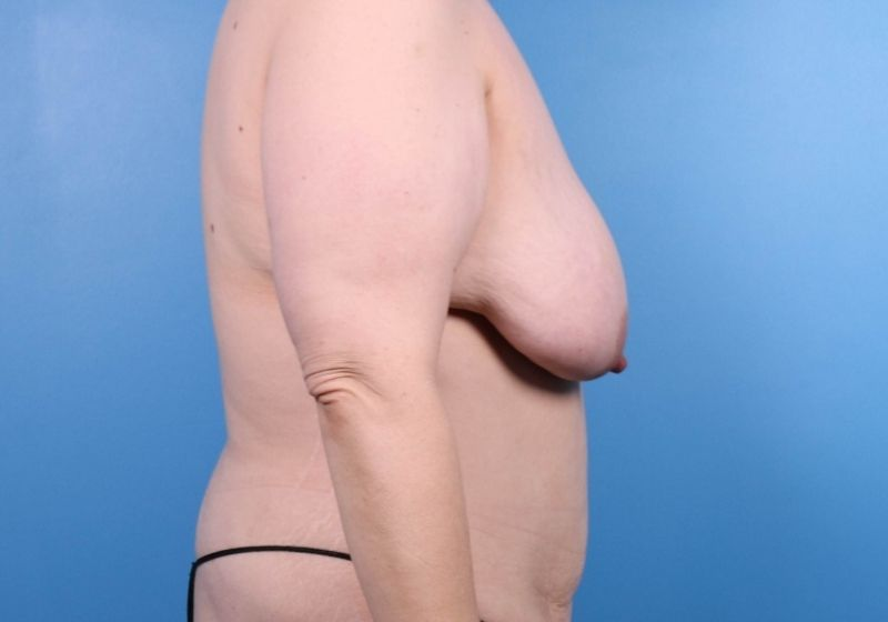 Before Breast Lift Surgery Raleigh Profile