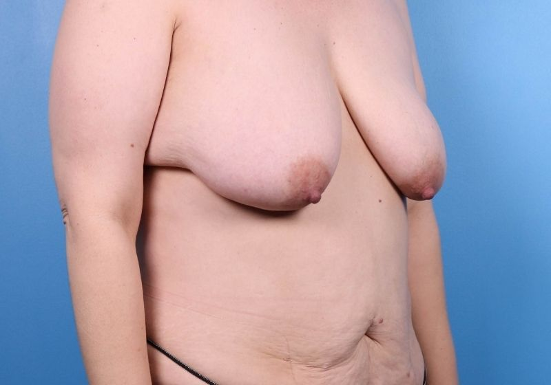 Before Breast Lift Surgery Raleigh Side