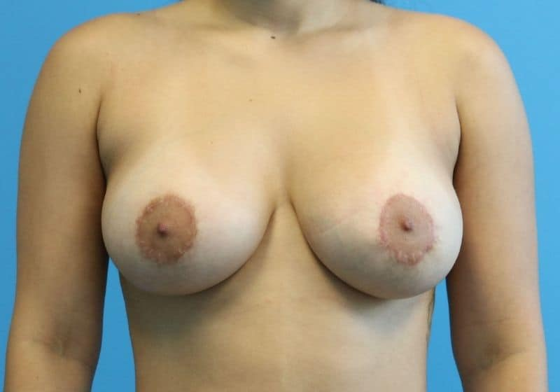 Raleigh, NC breast lift with augmentation surgery