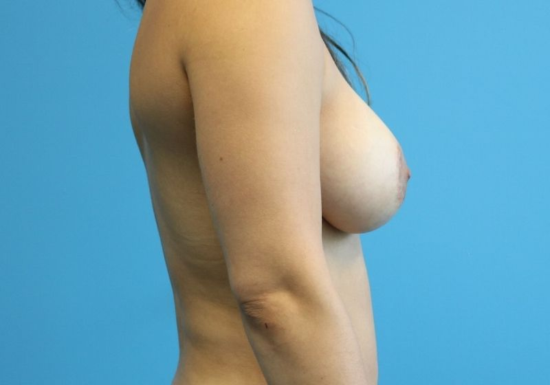 Raleigh breast lift with augmentation surgery