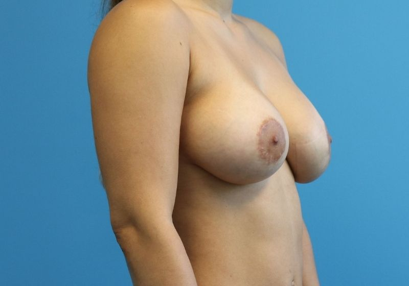 breast lift with augmentation Raleigh, NC