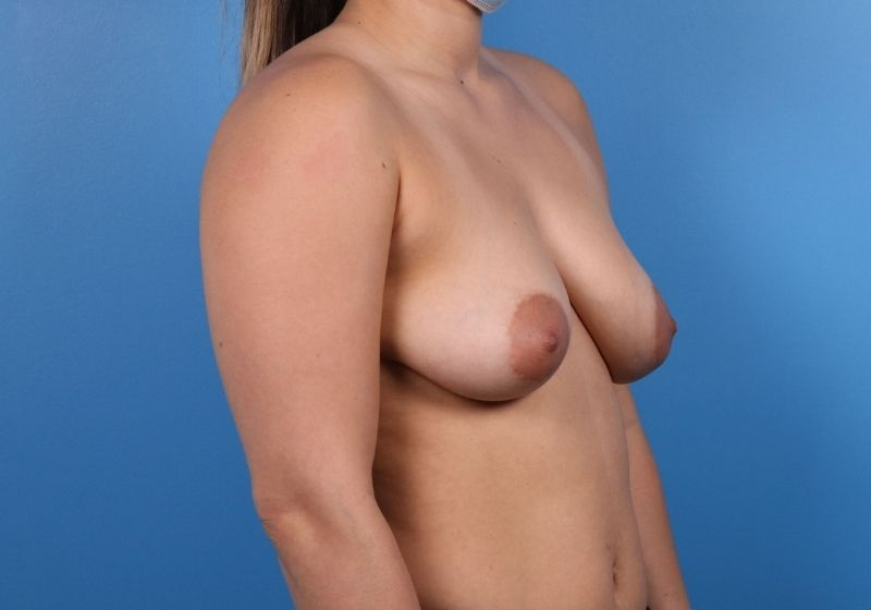 Raleigh breast lift with augmentation