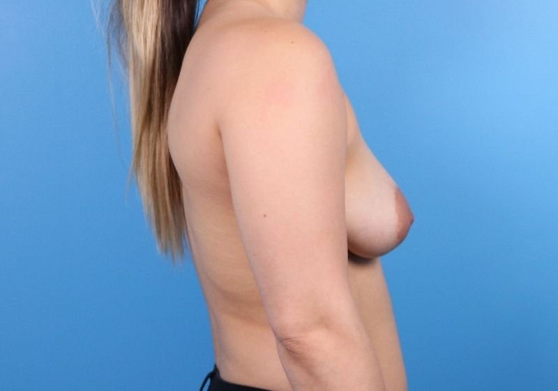Raleigh breast lift with augmentation procedure