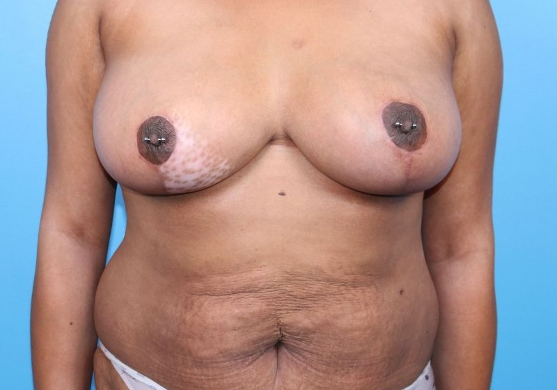 After Breast Reduction Raleigh Front