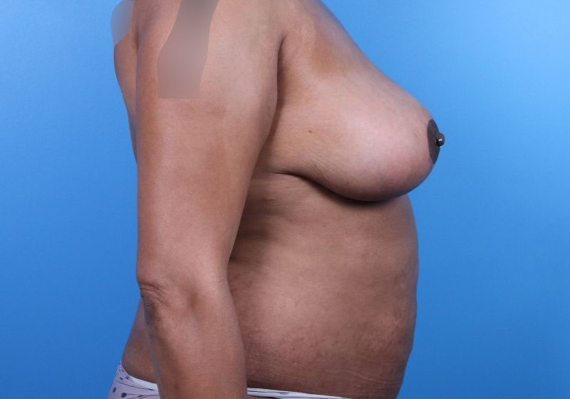 After Breast Reduction Raleigh Profile