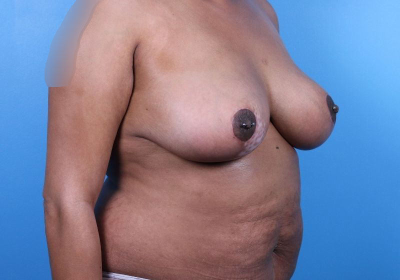 After Breast Reduction Raleigh Side