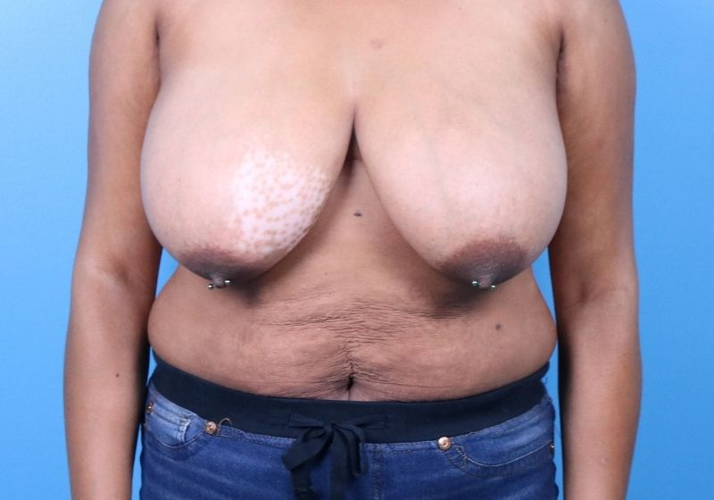 Before Breast Reduction Raleigh Front