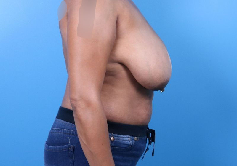 Before Breast Reduction Raleigh Profile