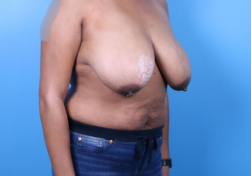 Before Breast Reduction Raleigh Side