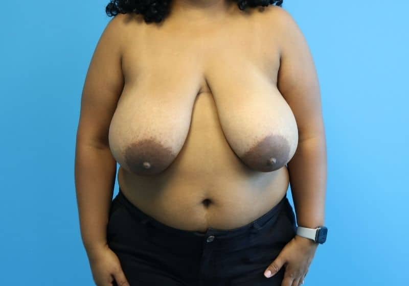 Raleigh, NC Breast Reduction Surgery Before