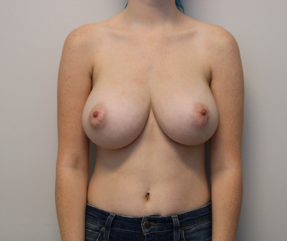 Breast Reduction Raleigh