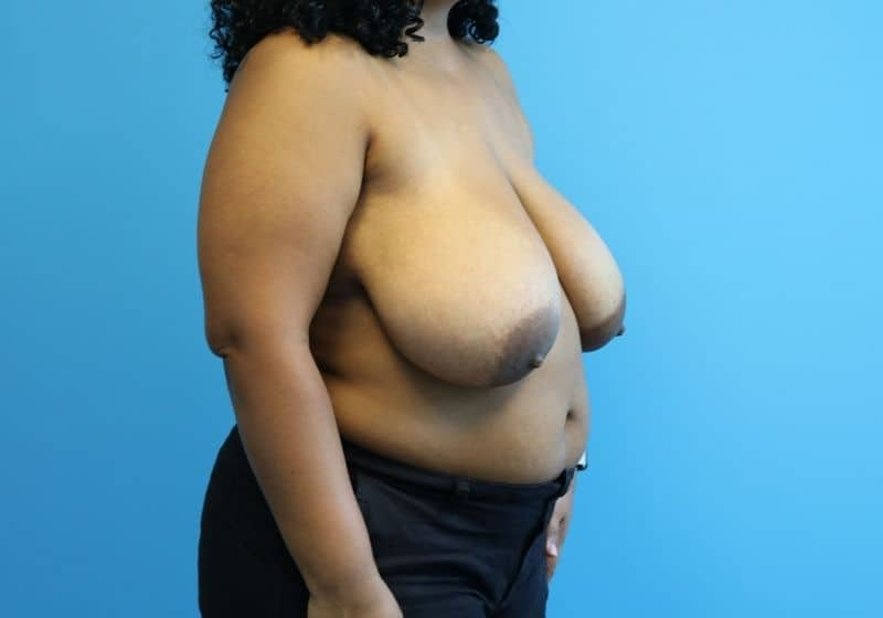 Raleigh Breast Reduction Surgery Before
