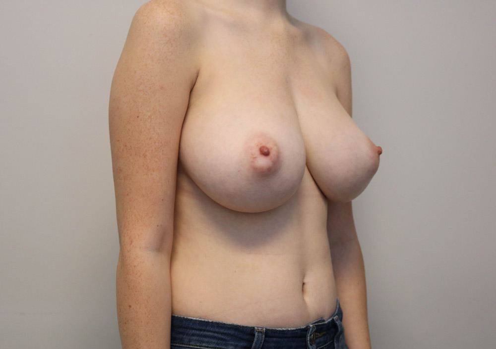 Raleigh breast reduction surgery - before image