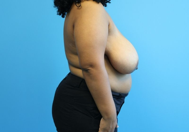 Raleigh NC Breast Reduction Before