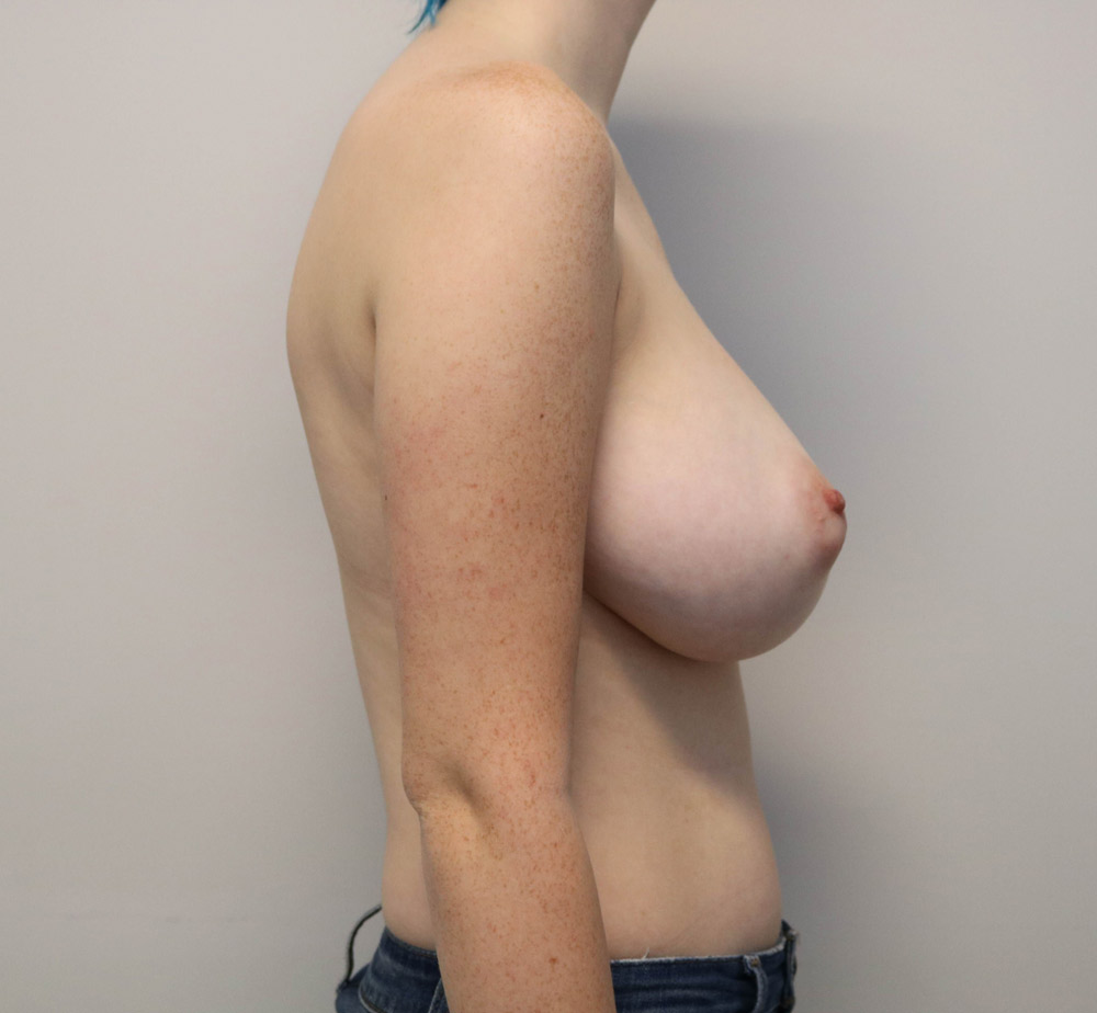 Breast Reduction Raleigh before picture