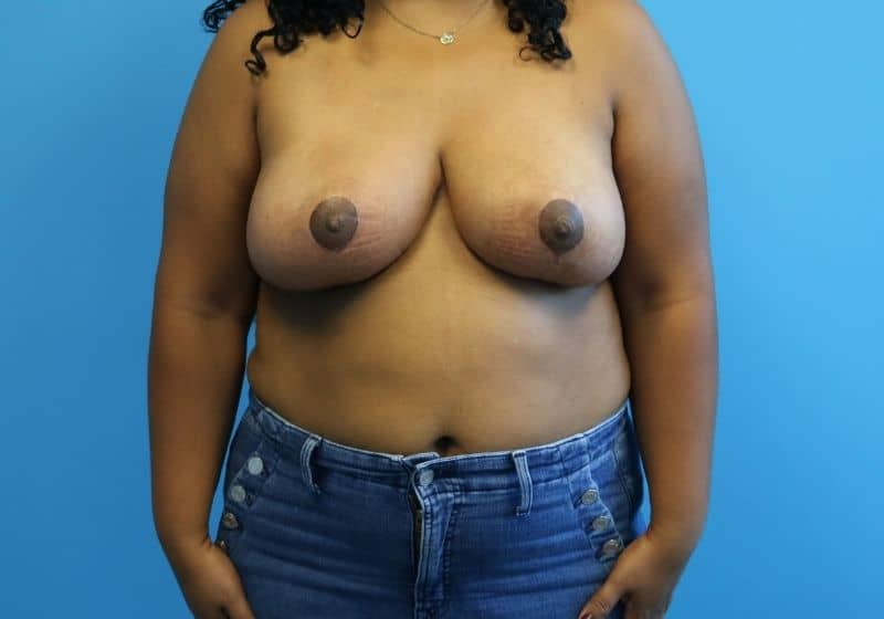 Raleigh Breast Reduction Surgery After Results Surgery