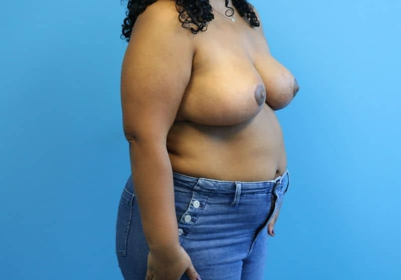 Raleigh NC Breast Reduction After Results Surgery