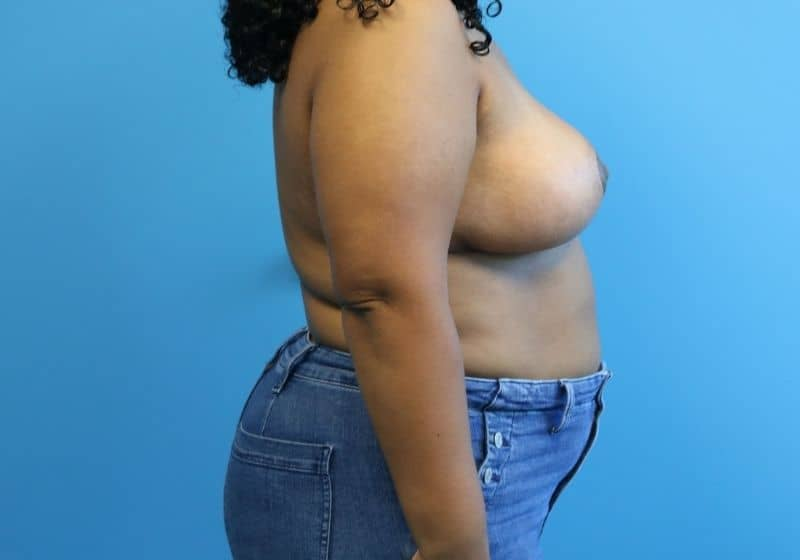 Raleigh Breast Reduction After Results Surgery
