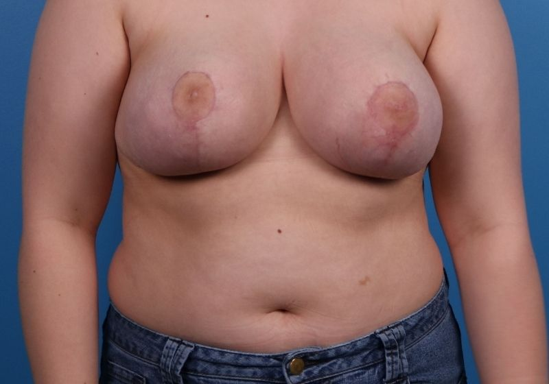 Breast Reduction Surgery Raleigh After Front