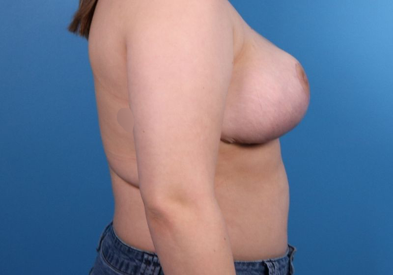 Breast Reduction Surgery Raleigh After Profile