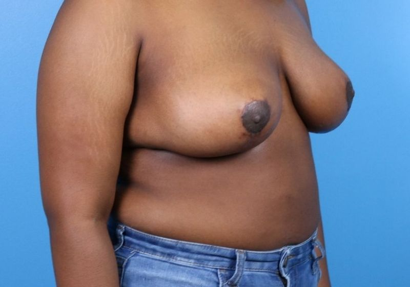 Breast Reduction Surgery Raleigh After Side