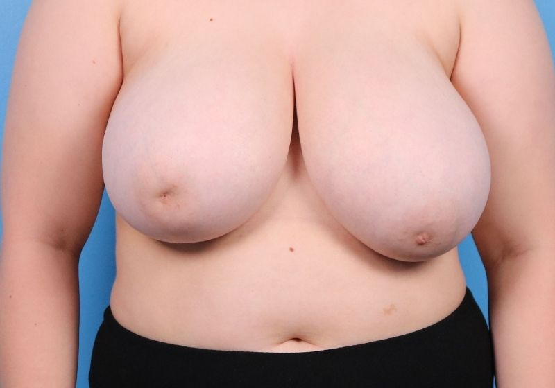 Breast Reduction Surgery Raleigh Before Front