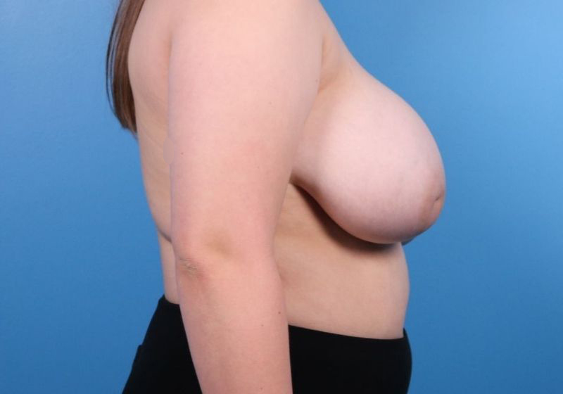 Breast Reduction Surgery Raleigh Before Profile