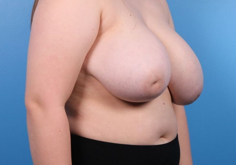 Breast Reduction Surgery Raleigh Before Side