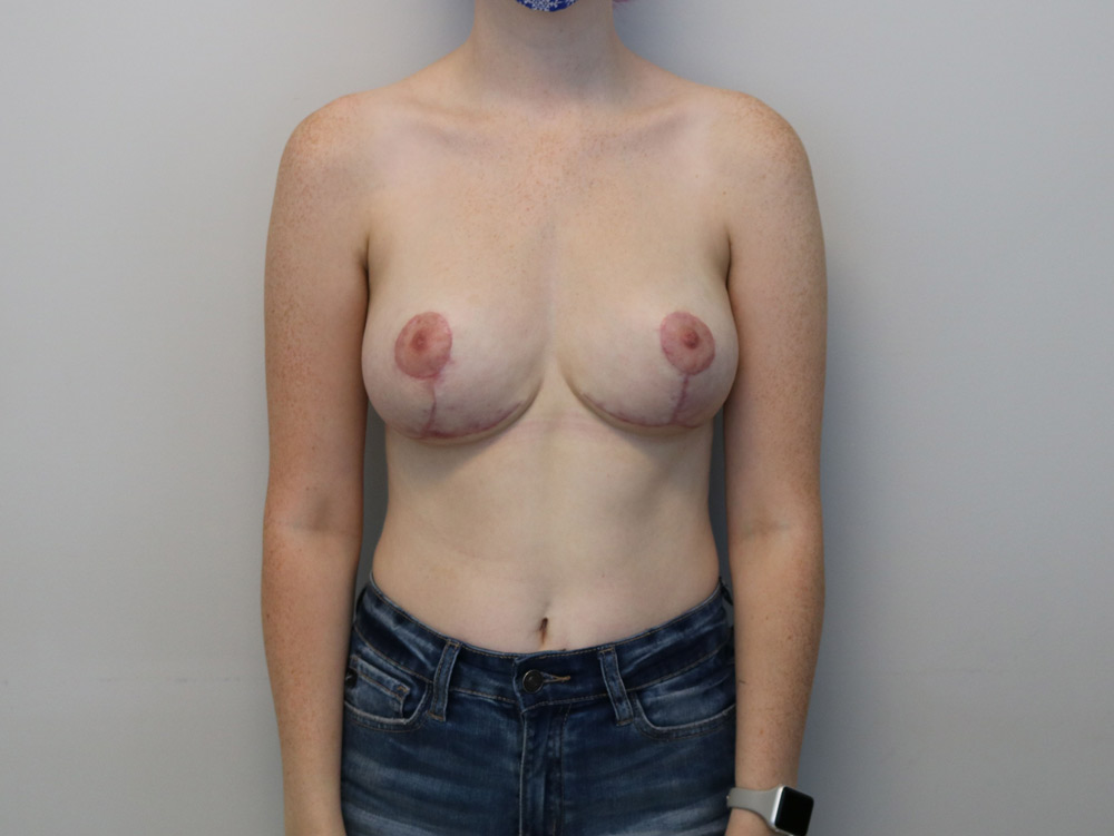raleigh breast reduction surgery after picture