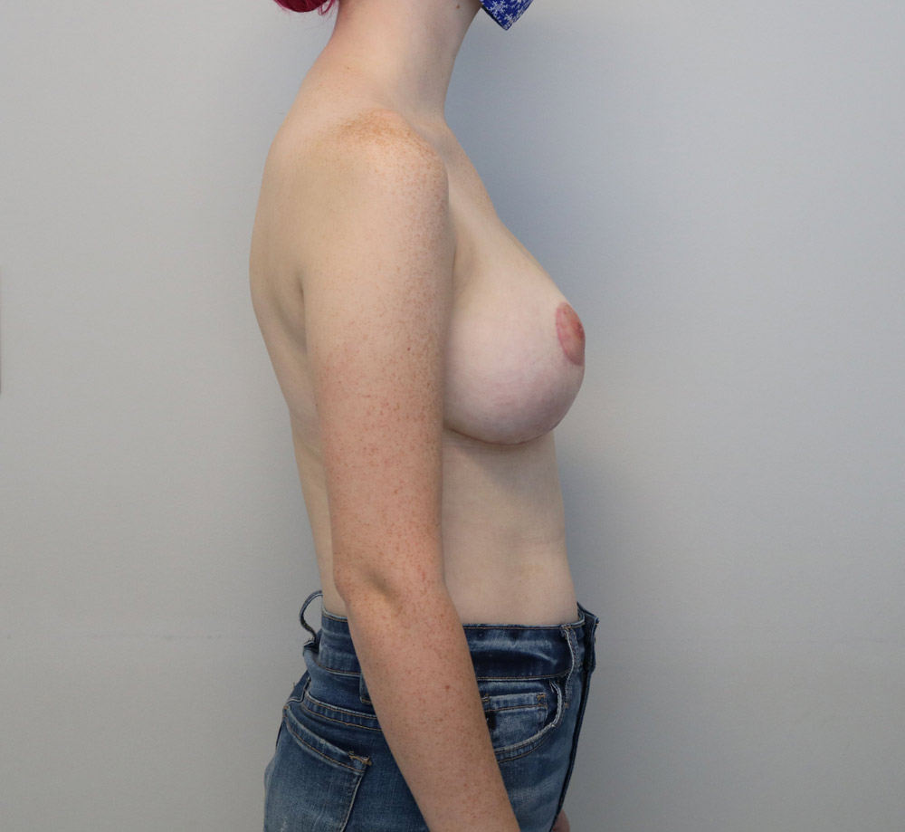 Raleigh breast reduction surgery after proceedure