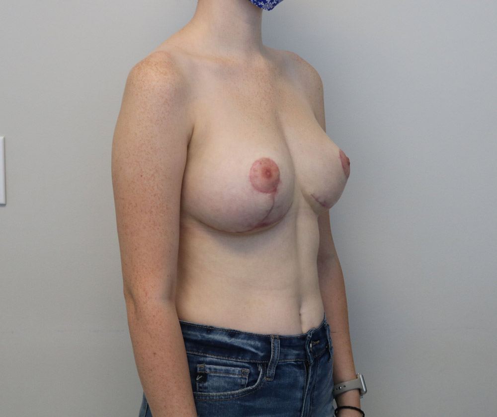 Raleigh breast reduction surgery after image