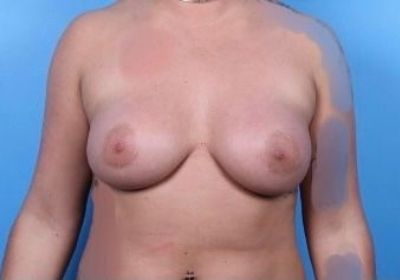 Raleigh Breast Revision Surgery 1