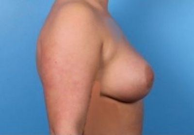 Raleigh breast revision surgery