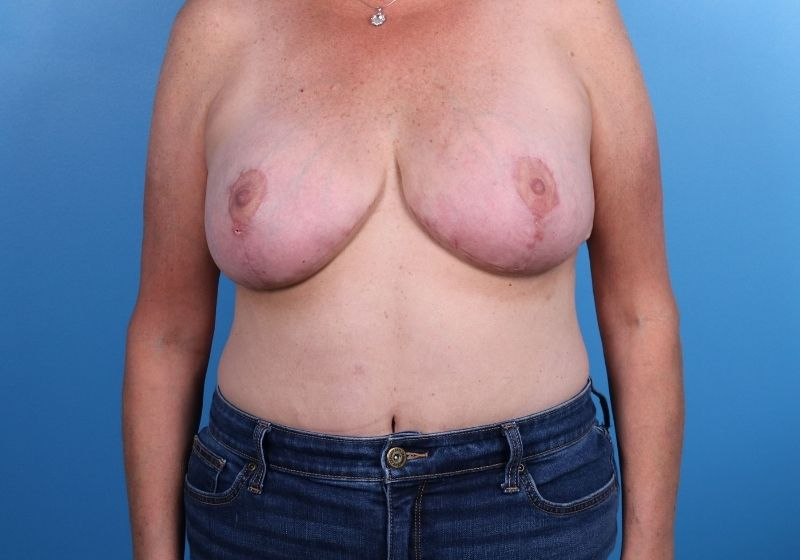 Breast Revision Surgery Raleigh After Front