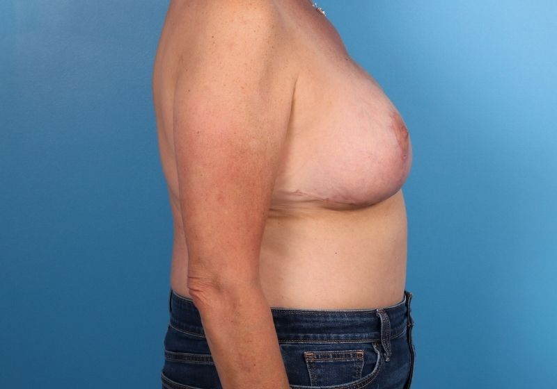 Breast Revision Surgery Raleigh After Profile